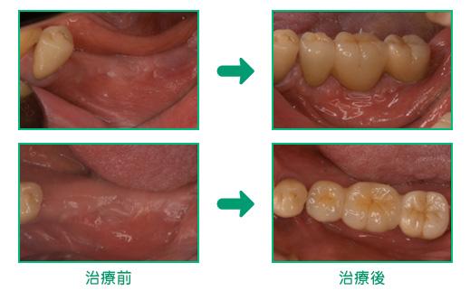 インプラント治療の治療例3