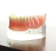 入れ歯治療のメリット