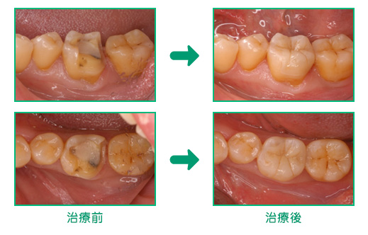 むし歯の治療例